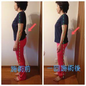 骨盤矯正 前と後の画像 横向き